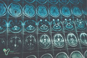 Лечение рака головного мозга в Германии
