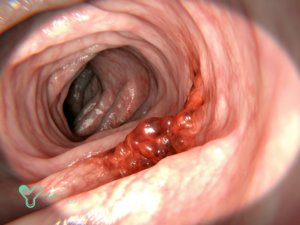 Лечение рака кишечника в Германии
