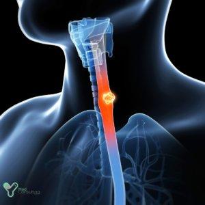 Лечение рака пищевода в Германии