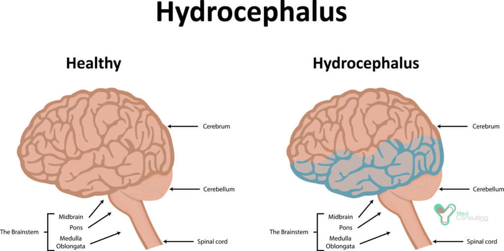 hydrocephalus disease essay Hydrocephalus is the buildup of fluid in the cavities (ventricles) deep within the brain the excess fluid increases the size of the ventricles and puts pressure on the brain cerebrospinal fluid normally flows through the ventricles and bathes the brain and spinal column.