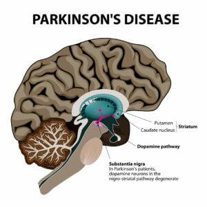 Лечение паркинсонизма в Германии