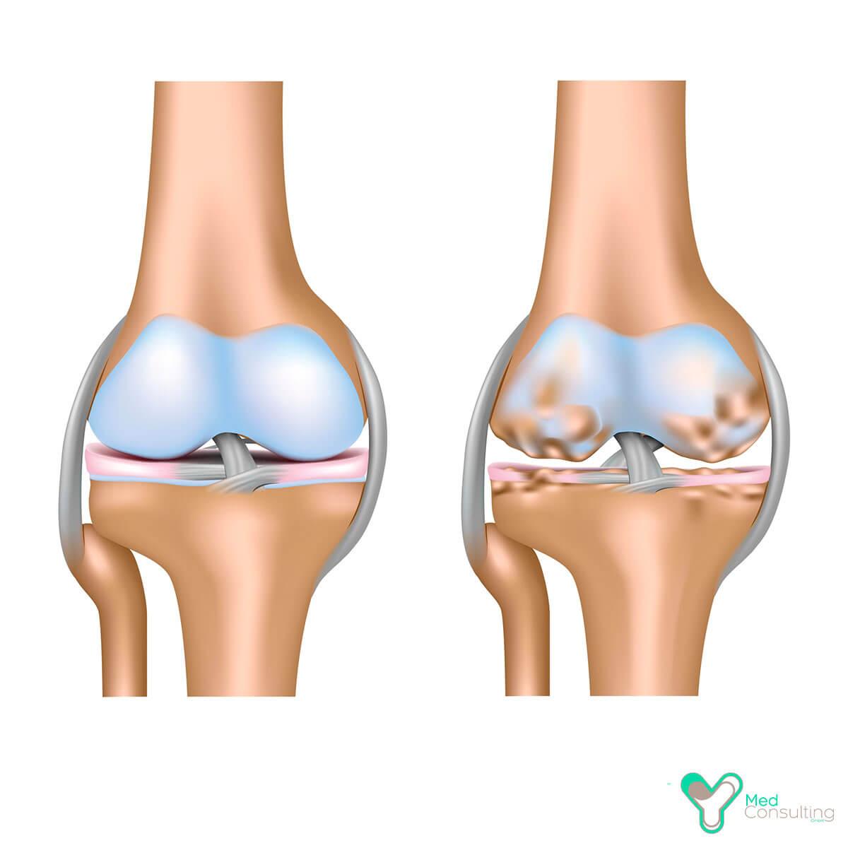 Остеохондроз позвоночника упражнения для лечения
