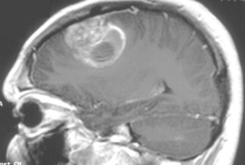 Лечение опухоли головного мозга - чашка Петри