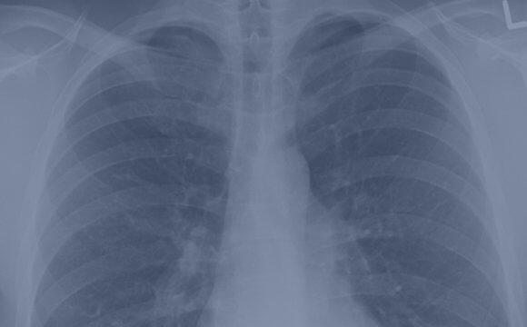 Выявление возбудителей туберкулеза